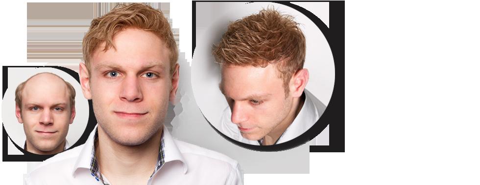 Haarergaenzung Male